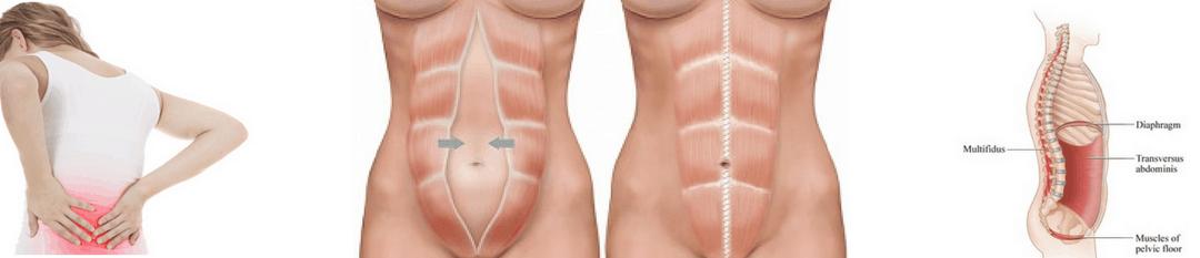 Common Postpartum Conditions